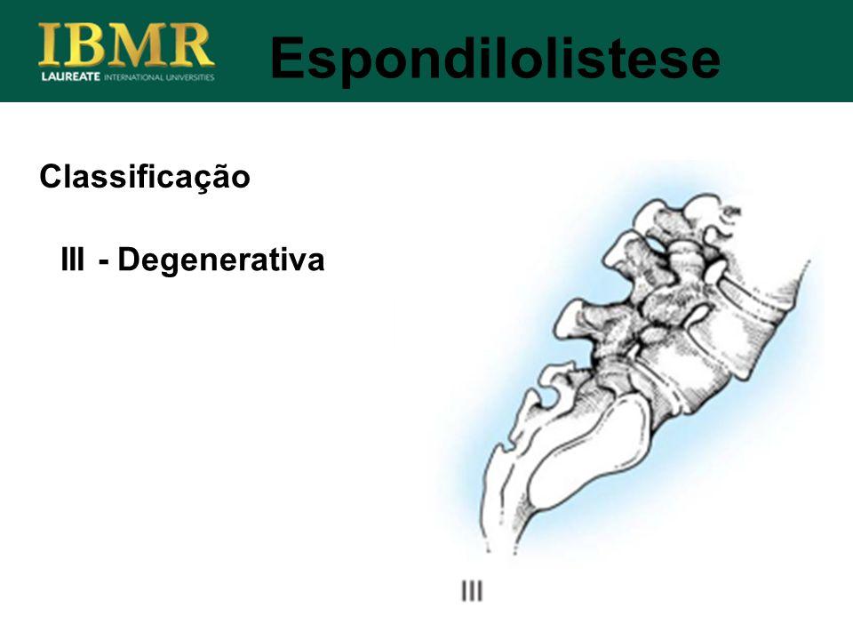 Espondilolistese III - Degenerativa Classificação