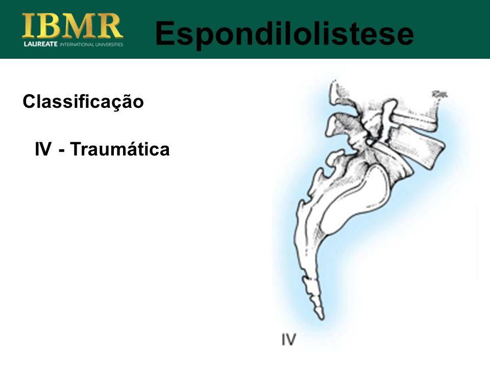 Espondilolistese IV - Traumática Classificação