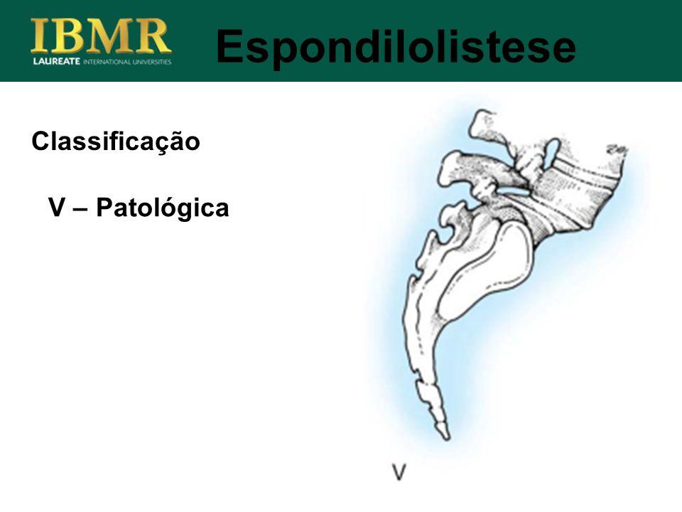 Espondilolistese V – Patológica Classificação