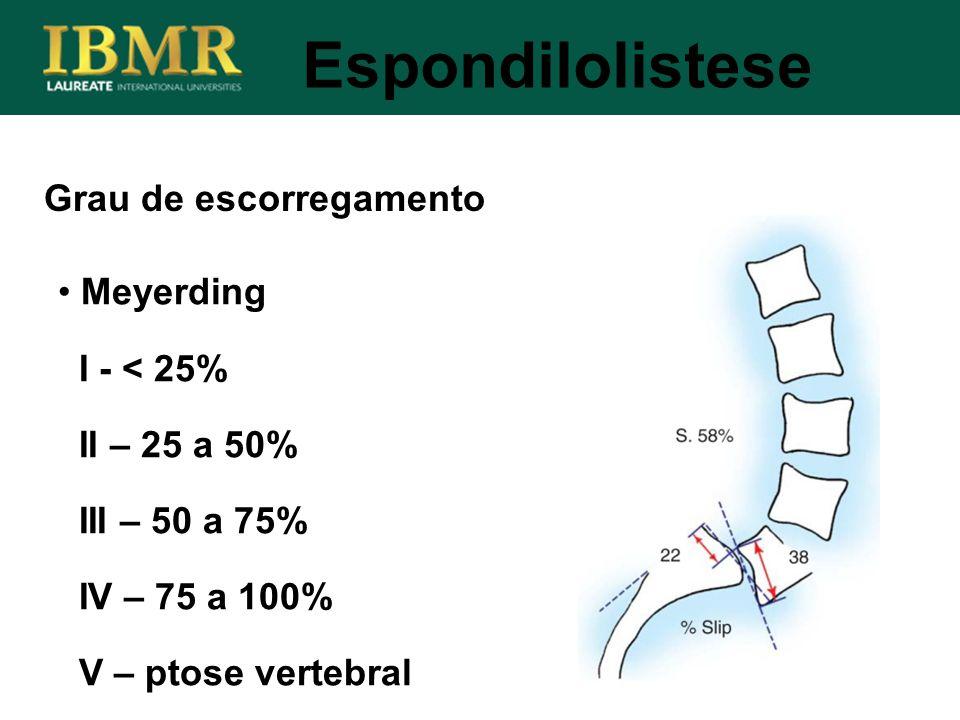 Espondilolistese Grau de escorregamento Meyerding I - < 25% II – 25 a 50% III – 50 a 75% IV – 75 a 100% V – ptose vertebral