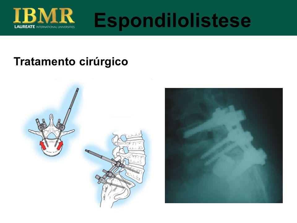 Tratamento cirúrgico Espondilolistese