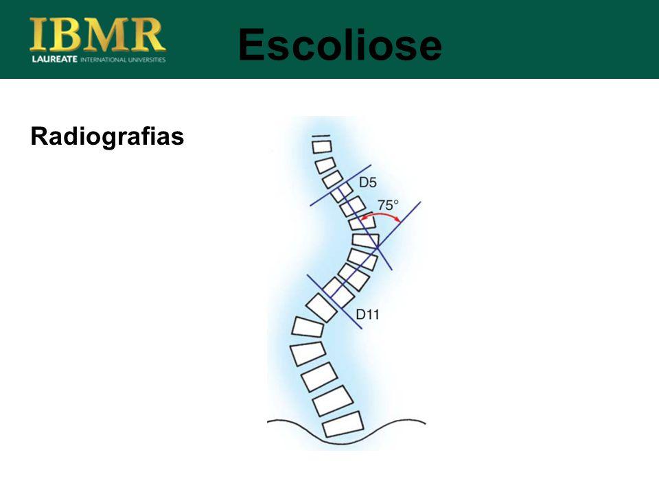 Radiografias Escoliose