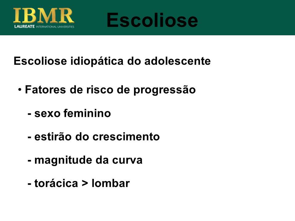 Escoliose idiopática do adolescente Escoliose Fatores de risco de progressão - sexo feminino - estirão do crescimento - magnitude da curva - torácica