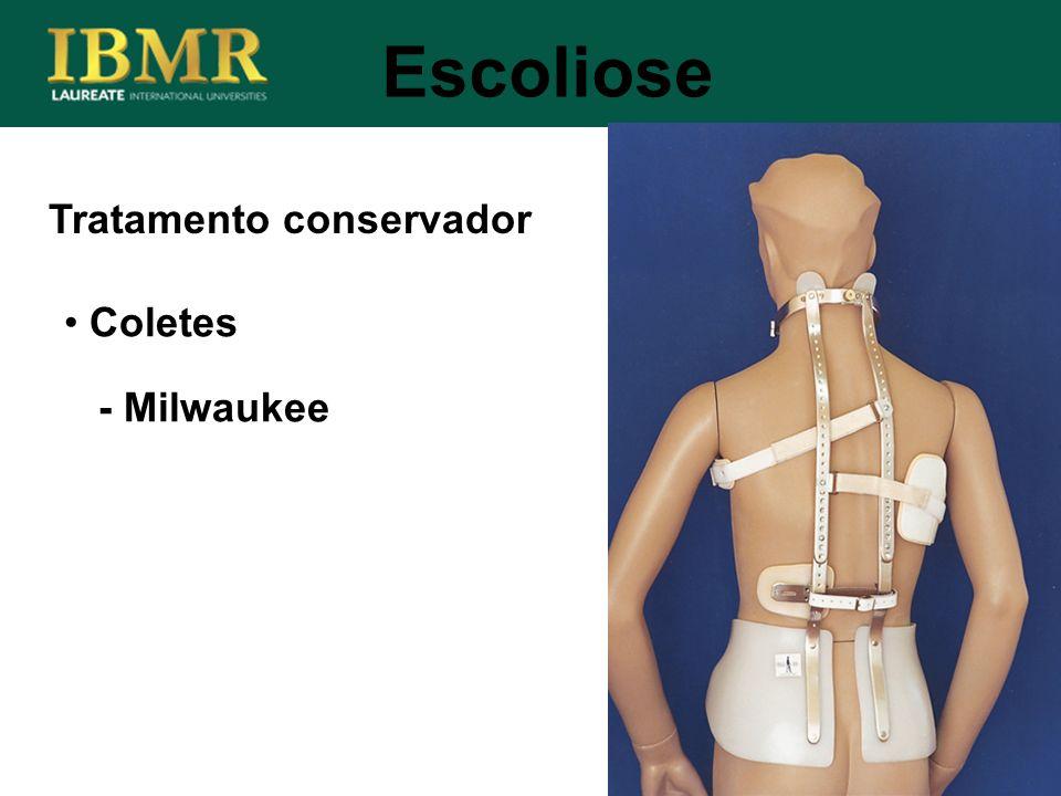 Tratamento conservador Escoliose Coletes - Milwaukee