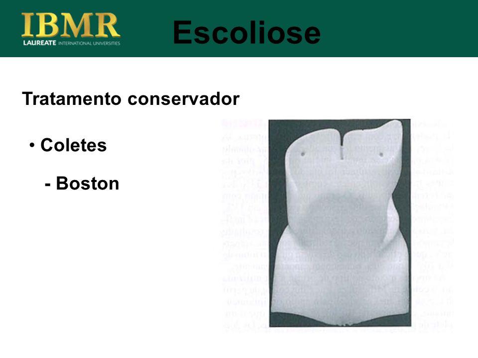 Tratamento conservador Escoliose Coletes - Boston