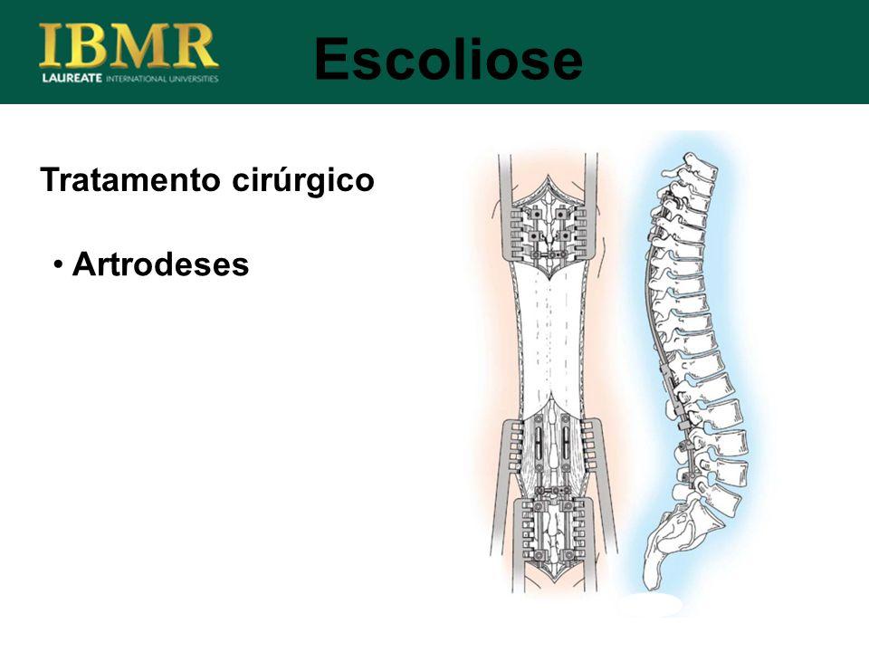 Tratamento cirúrgico Escoliose Artrodeses
