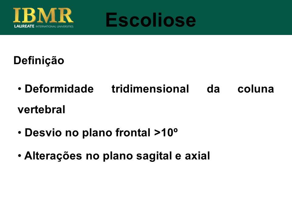 Definição Deformidade tridimensional da coluna vertebral Desvio no plano frontal >10º Alterações no plano sagital e axial Escoliose