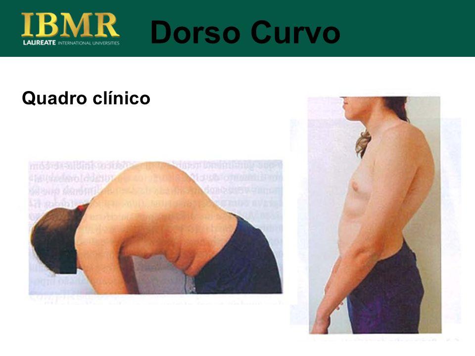 Quadro clínico Dorso Curvo