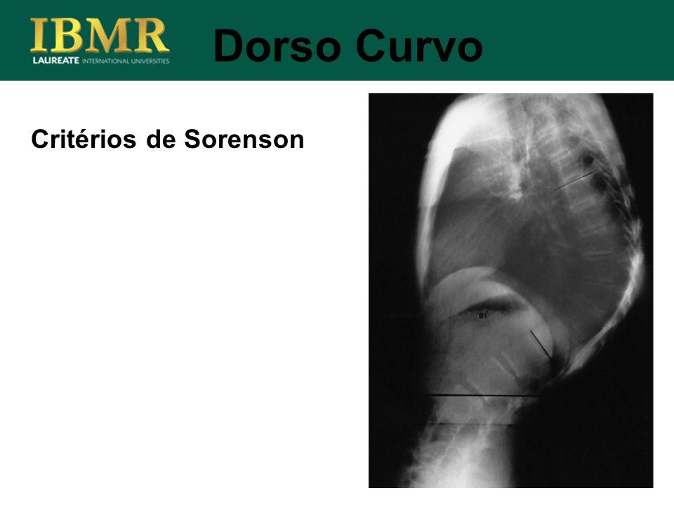 Critérios de Sorenson Dorso Curvo