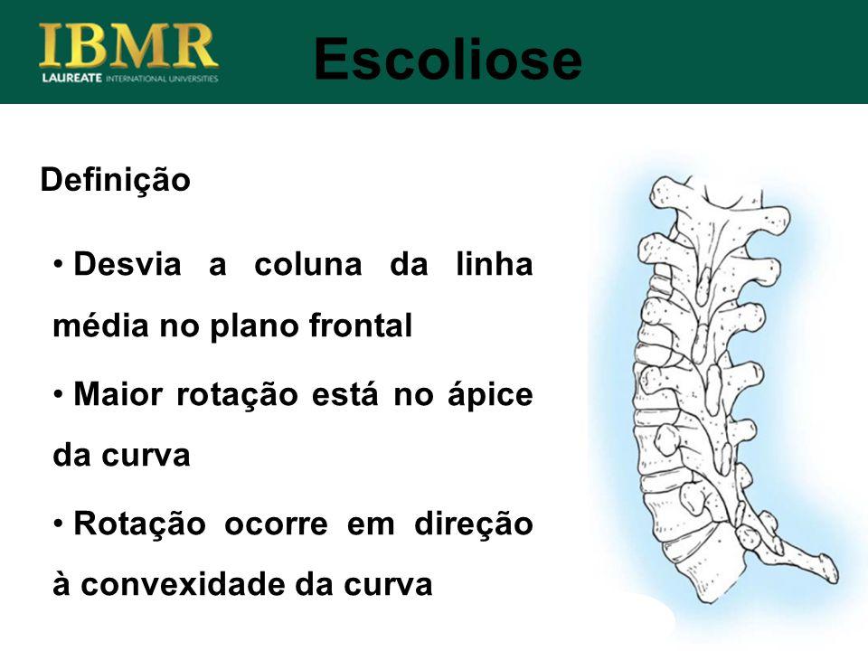 Definição Desvia a coluna da linha média no plano frontal Maior rotação está no ápice da curva Rotação ocorre em direção à convexidade da curva Escoli