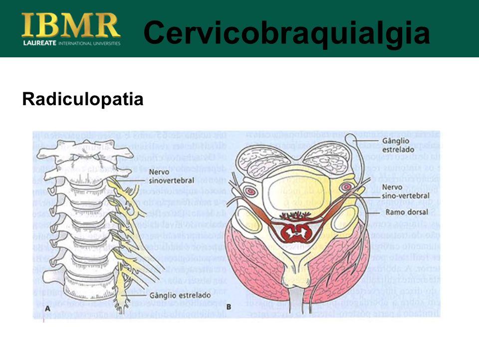Radiculopatia Cervicobraquialgia