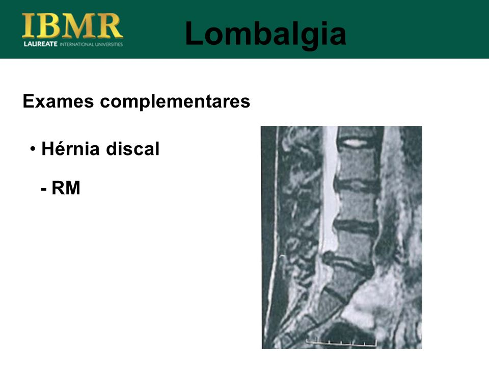 Exames complementares Lombalgia Hérnia discal - RM