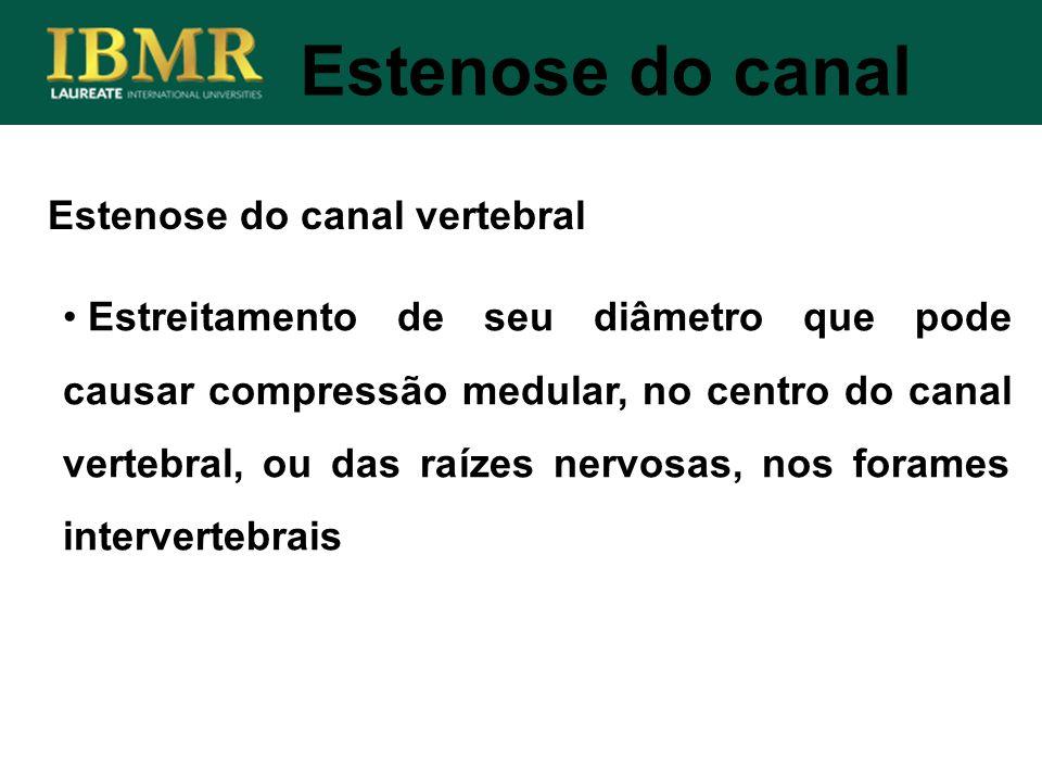 Estenose do canal Estreitamento de seu diâmetro que pode causar compressão medular, no centro do canal vertebral, ou das raízes nervosas, nos forames