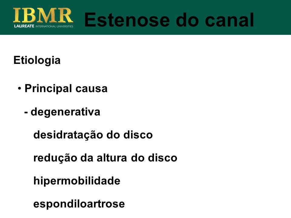 Estenose do canal Principal causa - degenerativa desidratação do disco redução da altura do disco hipermobilidade espondiloartrose Etiologia