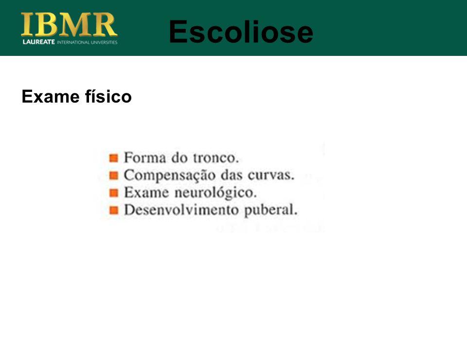 Exame físico Escoliose