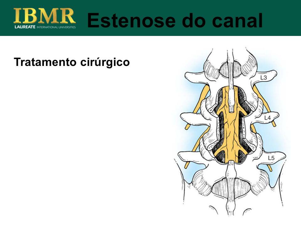 Tratamento cirúrgico Estenose do canal