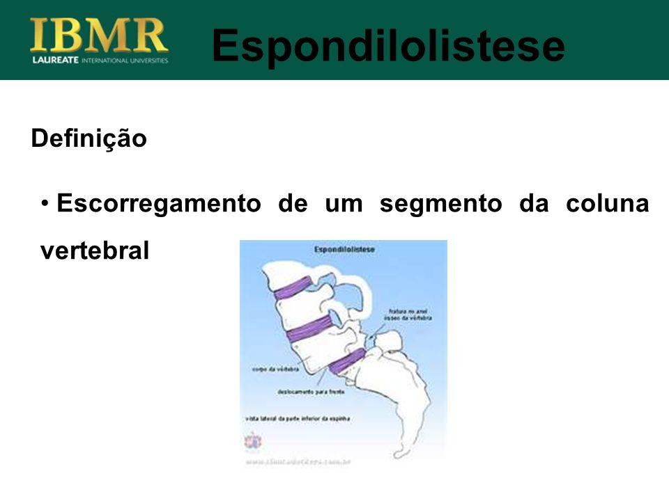 Espondilolistese Escorregamento de um segmento da coluna vertebral Definição
