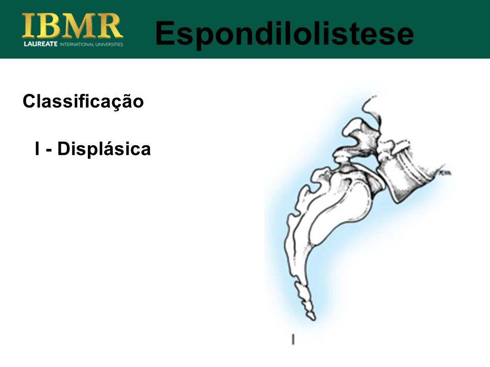 Espondilolistese I - Displásica Classificação
