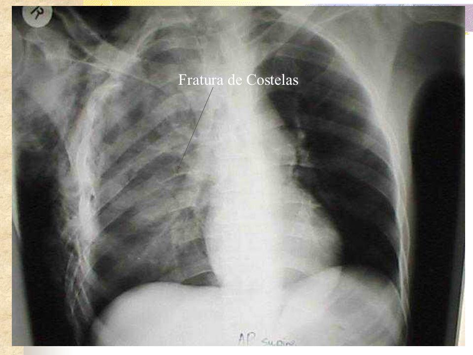 IV-Traumas de tórax específicos: a) Fraturas de costela e de esterno: Muito freqüente nas contusões torácicas, as fraturas de arcos costais tem aprese