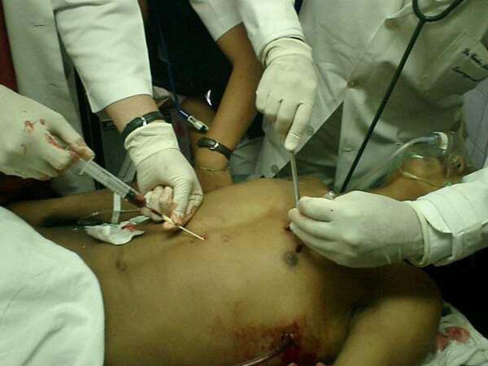g) Tamponamento cardíaco: Sangue acumulado no saco pericárdico, podem interferir de maneira significativa no enchimento cardíaco: Turgência de jugular