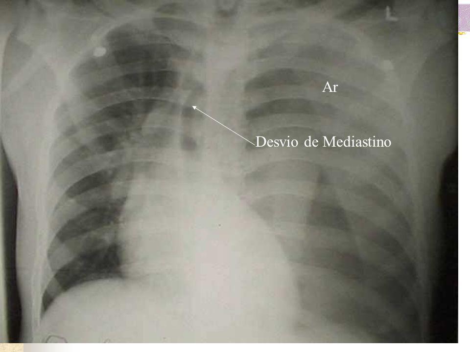 i) Pneumotórax hipertensivo: É de diagnóstico essencialmente clínico, dispensando na maioria das vezes a realização da radiografia de tórax para que s