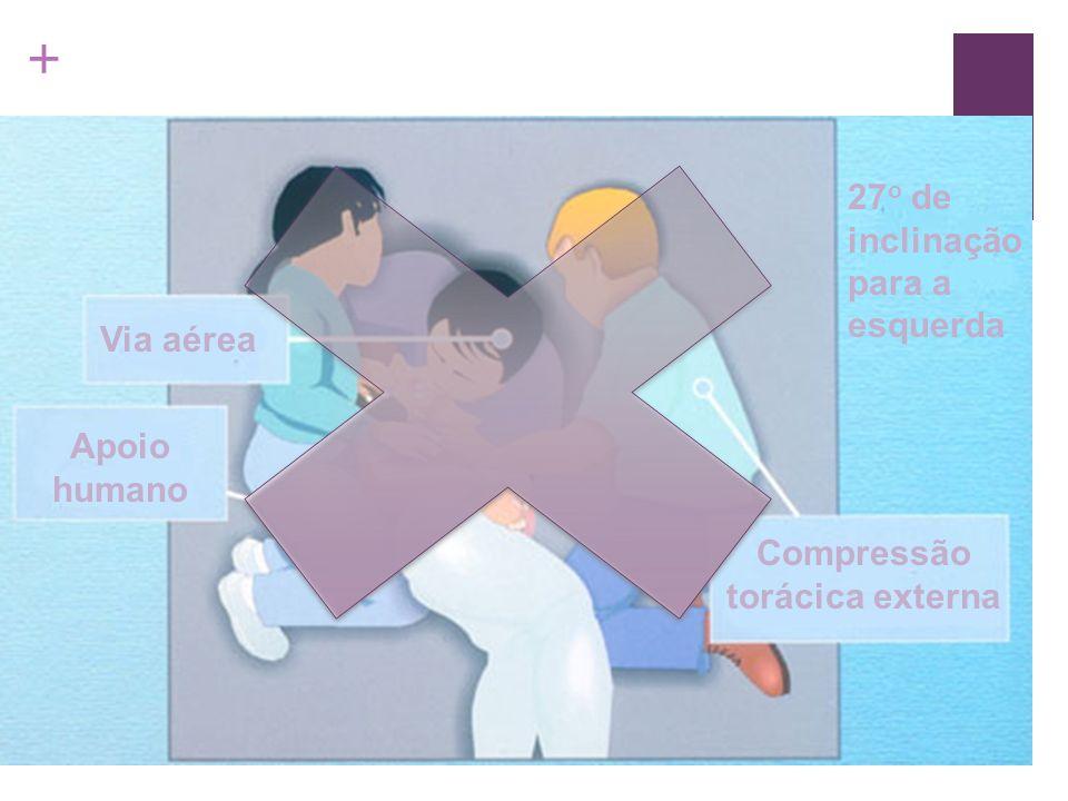 + Via aérea Apoio humano Compressão torácica externa 27 o de inclinação para a esquerda