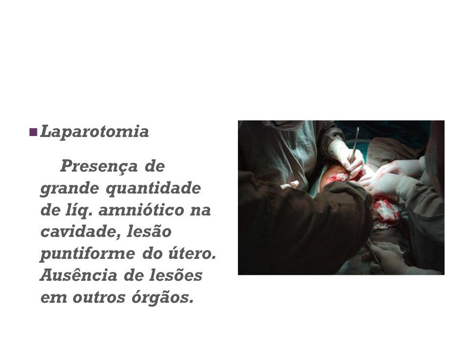 Laparotomia Presença de grande quantidade de líq. amniótico na cavidade, lesão puntiforme do útero. Ausência de lesões em outros órgãos.