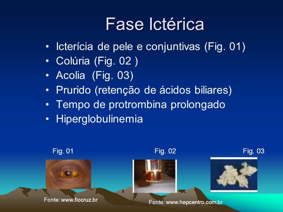 Fase Ictérica Icterícia de pele e conjuntivas (Fig. 01) Colúria (Fig. 02 ) Acolia (Fig. 03) Prurido (retenção de ácidos biliares) Tempo de protrombina