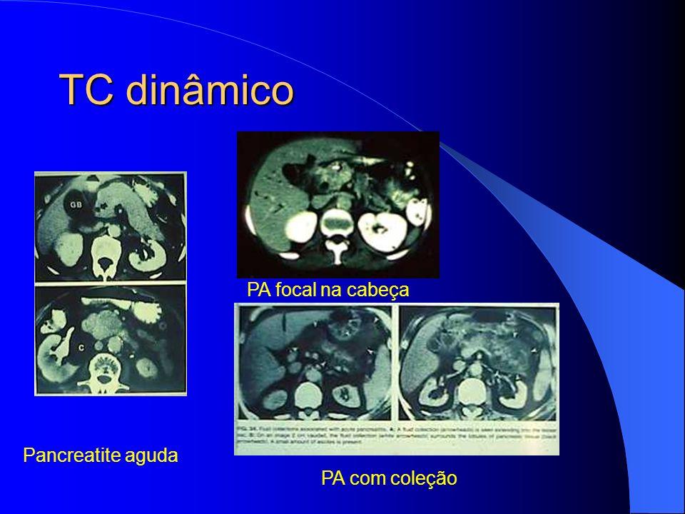 TC dinâmico Pancreatite aguda PA focal na cabeça PA com coleção