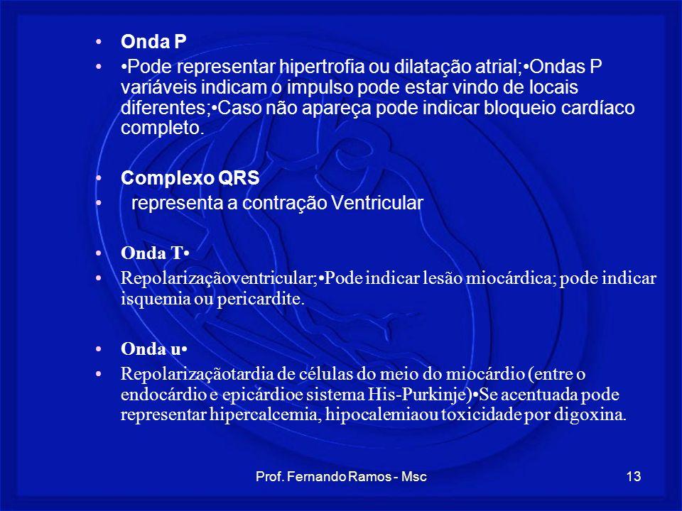 Prof. Fernando Ramos - Msc13 Onda P Pode representar hipertrofia ou dilatação atrial;Ondas P variáveis indicam o impulso pode estar vindo de locais di