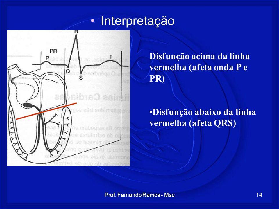 Prof. Fernando Ramos - Msc14 Interpretação Disfunção acima da linha vermelha (afeta onda P e PR) Disfunção abaixo da linha vermelha (afeta QRS)