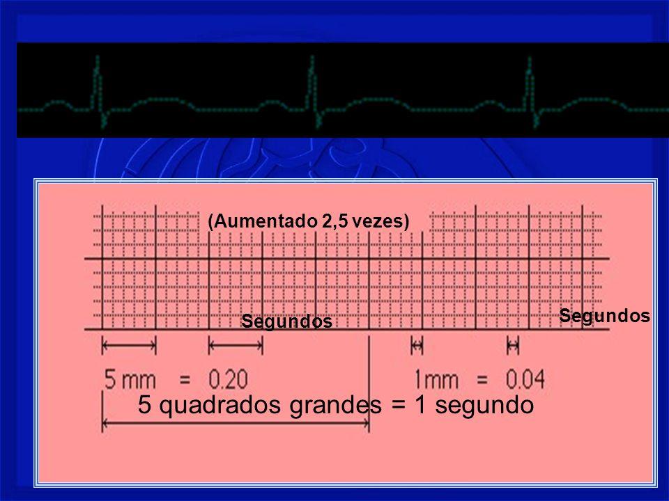 Prof. Fernando Ramos - Msc15 5 quadrados grandes = 1 segundo (Aumentado 2,5 vezes) Segundos