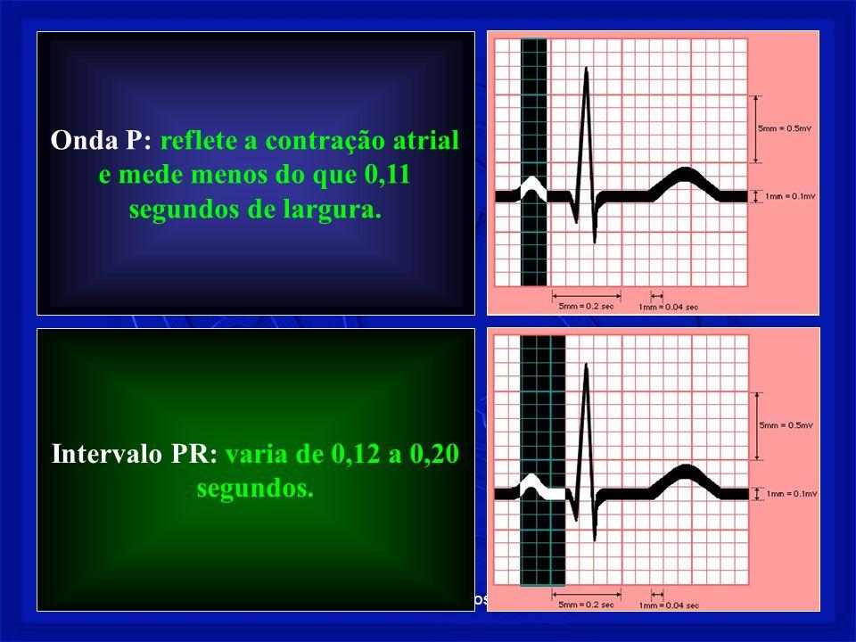 Prof. Fernando Ramos - Msc16 Onda P: reflete a contração atrial e mede menos do que 0,11 segundos de largura. Intervalo PR: varia de 0,12 a 0,20 segun