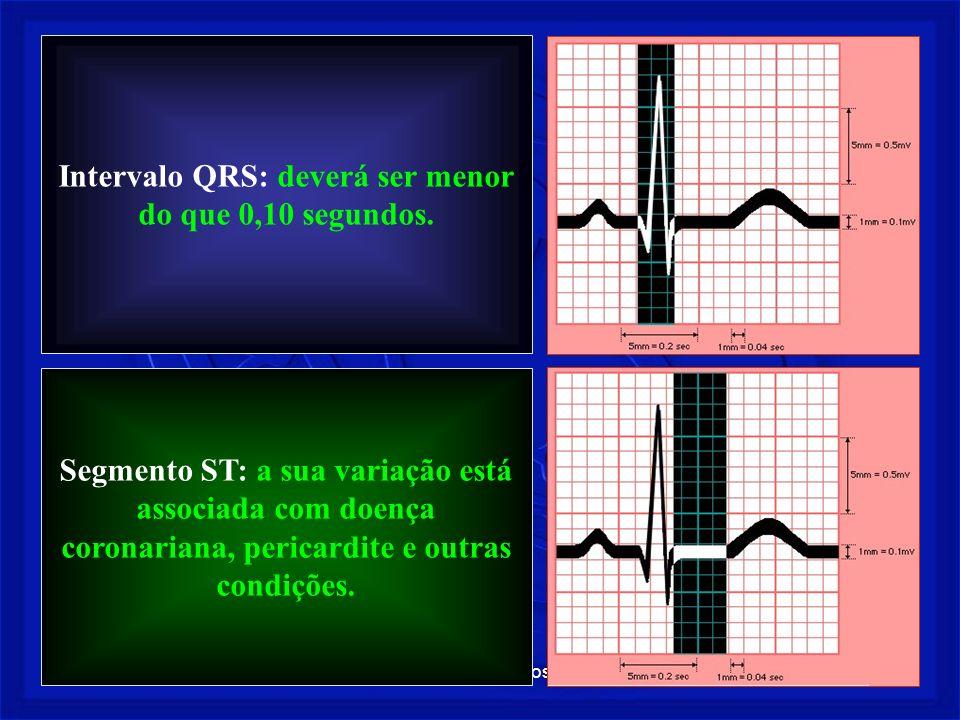 Prof. Fernando Ramos - Msc17 Intervalo QRS: deverá ser menor do que 0,10 segundos. Segmento ST: a sua variação está associada com doença coronariana,
