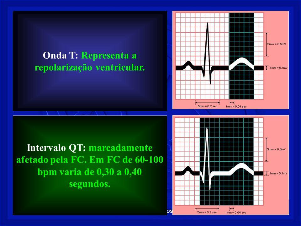 Prof. Fernando Ramos - Msc18 Onda T: Representa a repolarização ventricular. Intervalo QT: marcadamente afetado pela FC. Em FC de 60-100 bpm varia de