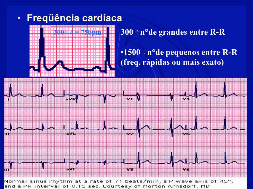 Prof. Fernando Ramos - Msc19 Freqüência cardíaca 300 ÷n°de grandes entre R-R 1500 ÷n°de pequenos entre R-R (freq. rápidas ou mais exato)