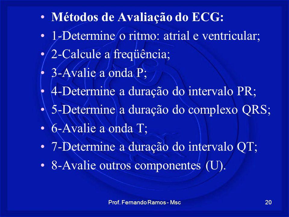 Prof. Fernando Ramos - Msc20 Métodos de Avaliação do ECG: 1-Determine o ritmo: atrial e ventricular; 2-Calcule a freqüência; 3-Avalie a onda P; 4-Dete