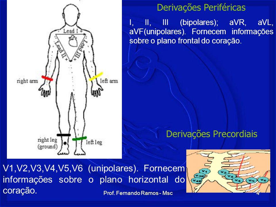 Prof. Fernando Ramos - Msc4 I, II, III (bipolares); aVR, aVL, aVF(unipolares). Fornecem informações sobre o plano frontal do coração. V1,V2,V3,V4,V5,V