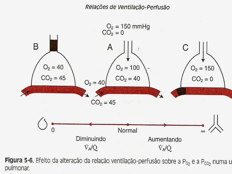 Indicações para AVM Anormalidades ventilatórias:Disfunção do Músculo respiratório; Diminuição do drive Respiratório; Aumento da resistência das Vias aéreas e/ ou obstrução.
