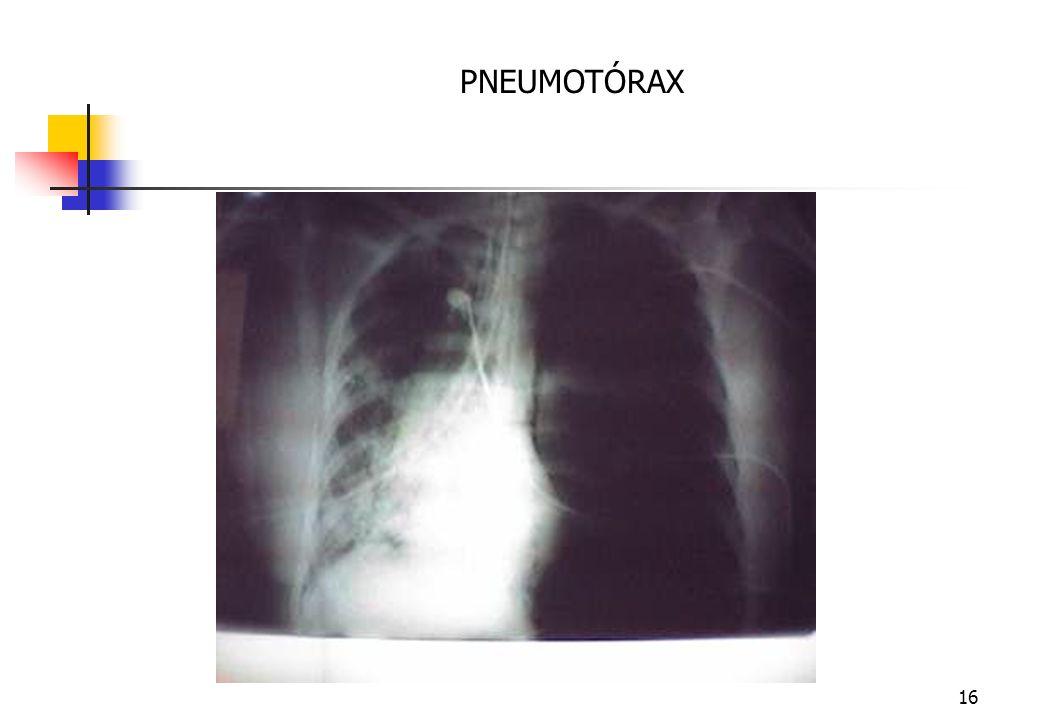 15 B-VENTILAÇÃO E RESPIRAÇÃO Exame Físico Creptações, Enfisema Subcutâneo, Timpanismo Torácico( Pneumotórax), Macicez Torácica ( Hemotórax). Medidas I