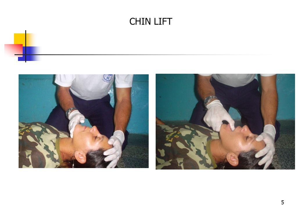 4 Atendimento Inicial ao Traumatizado 1. Planejamento 1. Triagem 1. Avaliação Primária A- Vias Aéreas e Controle da Coluna Cervical Manobras de Chin L
