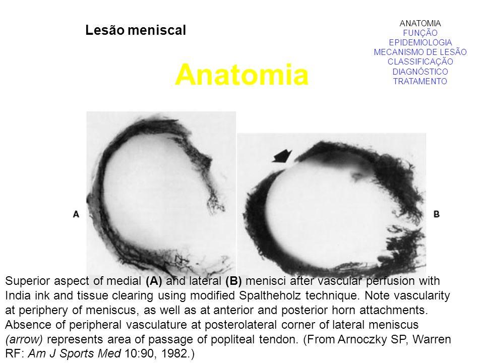 Lesão meniscal Anatomia ANATOMIA FUNÇÃO EPIDEMIOLOGIA MECANISMO DE LESÃO CLASSIFICAÇÃO DIAGNÓSTICO TRATAMENTO Superior aspect of medial (A) and latera