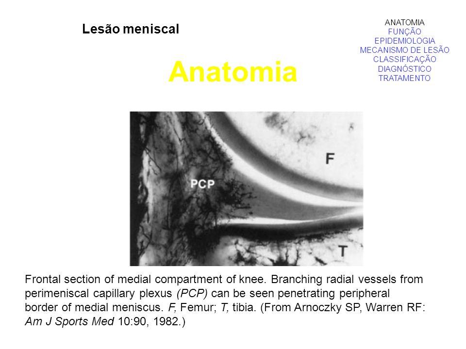 Lesão meniscal Anatomia ANATOMIA FUNÇÃO EPIDEMIOLOGIA MECANISMO DE LESÃO CLASSIFICAÇÃO DIAGNÓSTICO TRATAMENTO Frontal section of medial compartment of