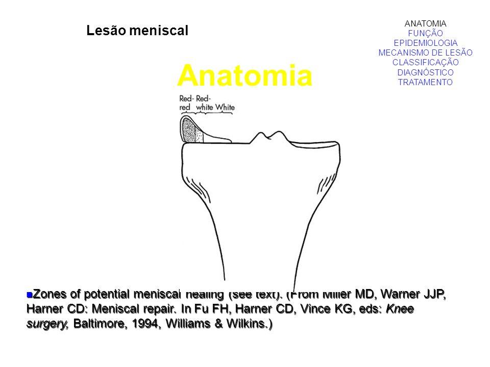 Lesão meniscal Anatomia ANATOMIA FUNÇÃO EPIDEMIOLOGIA MECANISMO DE LESÃO CLASSIFICAÇÃO DIAGNÓSTICO TRATAMENTO Zones of potential meniscal healing (see