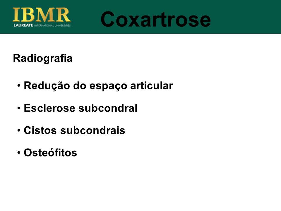Radiografia Coxartrose Redução do espaço articular Esclerose subcondral Cistos subcondrais Osteófitos