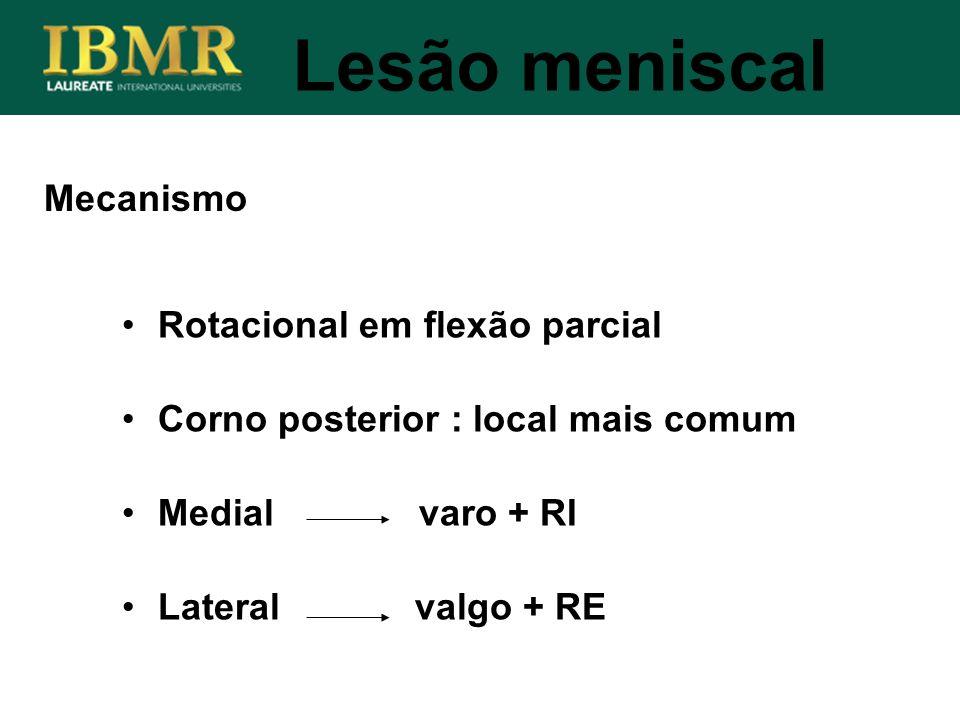Lesão meniscal Mecanismo Rotacional em flexão parcial Corno posterior : local mais comum Medial varo + RI Lateral valgo + RE