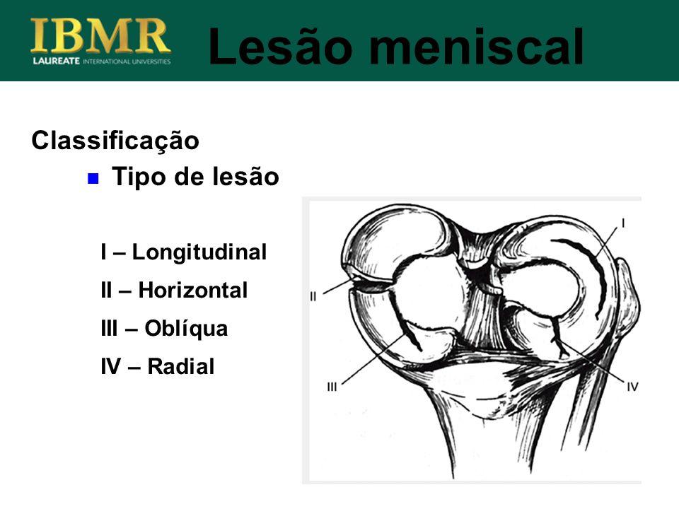 Lesão meniscal Classificação Tipo de lesão I – Longitudinal II – Horizontal III – Oblíqua IV – Radial