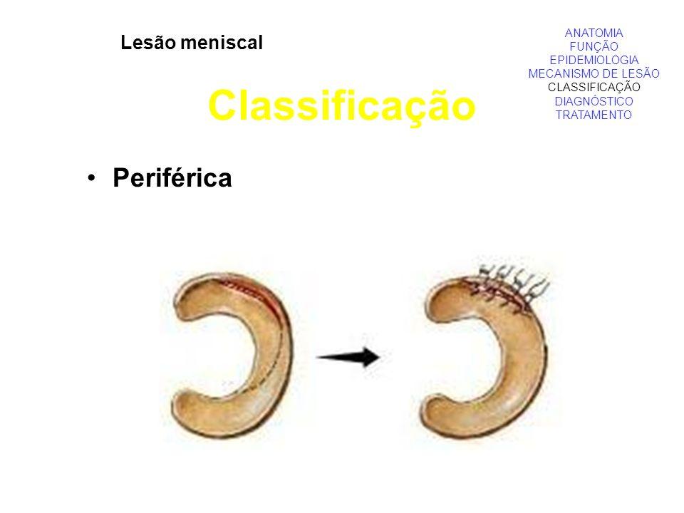 ANATOMIA FUNÇÃO EPIDEMIOLOGIA MECANISMO DE LESÃO CLASSIFICAÇÃO DIAGNÓSTICO TRATAMENTO Lesão meniscal Classificação Periférica