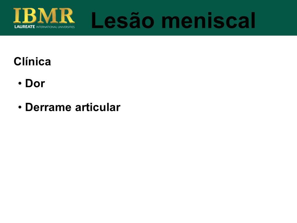 Lesão meniscal Clínica Dor Derrame articular