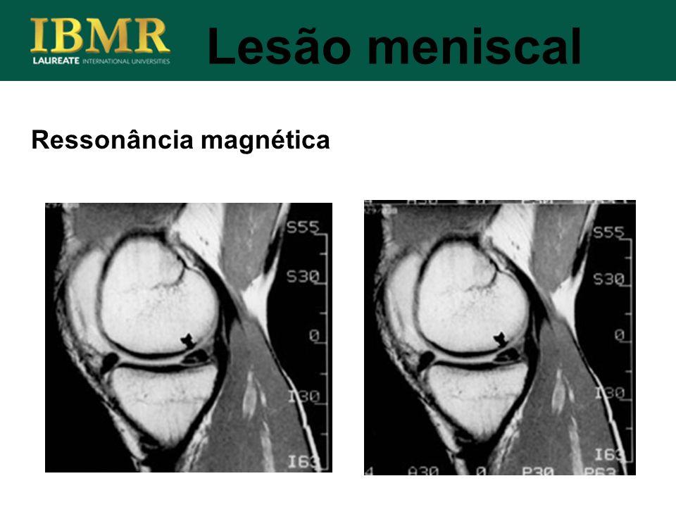 Lesão meniscal Ressonância magnética